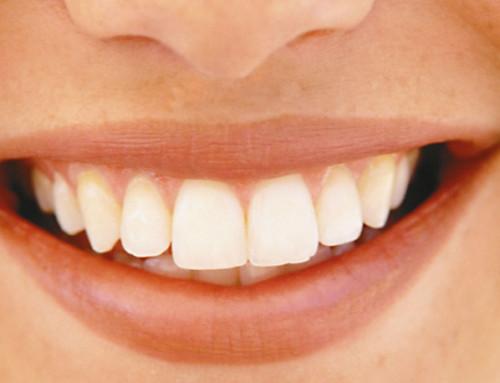 Zahnärztliche Gesundheitsfrühförderung beginnt in der Schwangerschaft