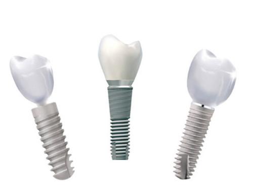 Zahnimplantate – Wenn ja, wie funktioniert's idealerweise