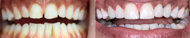 Bonding Schablonentechnik