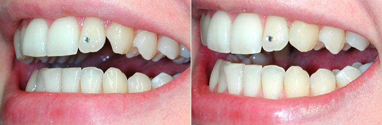 Bonding Zahnform