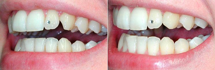 Bonding Direkte ästhetische Zahnkorrekturen ästhetische